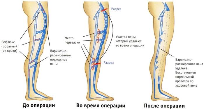 Флебоктомия в Воронеже
